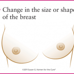 3 - Warning signs - change in size or shape